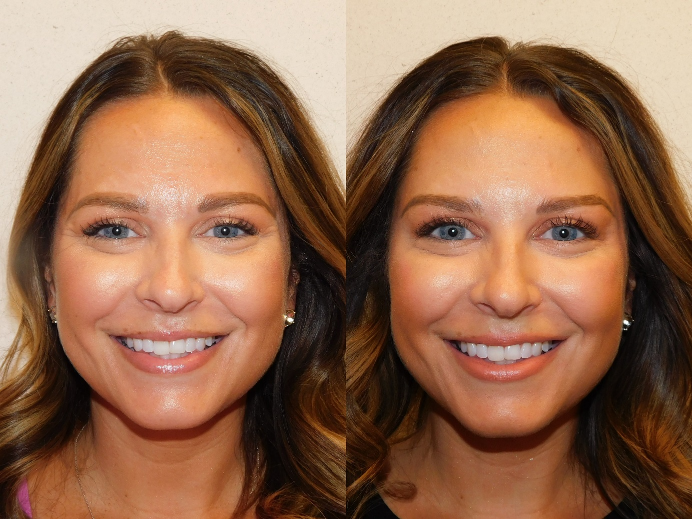Botox results-Jeuveau-#NEWTOX-Dr. Joel Schlessinger-LovelySkin Omaha-Omaha Blogger-Omaha Beauty Blogger-Beauty Blog Post-Botox Results-Sabby Style-7
