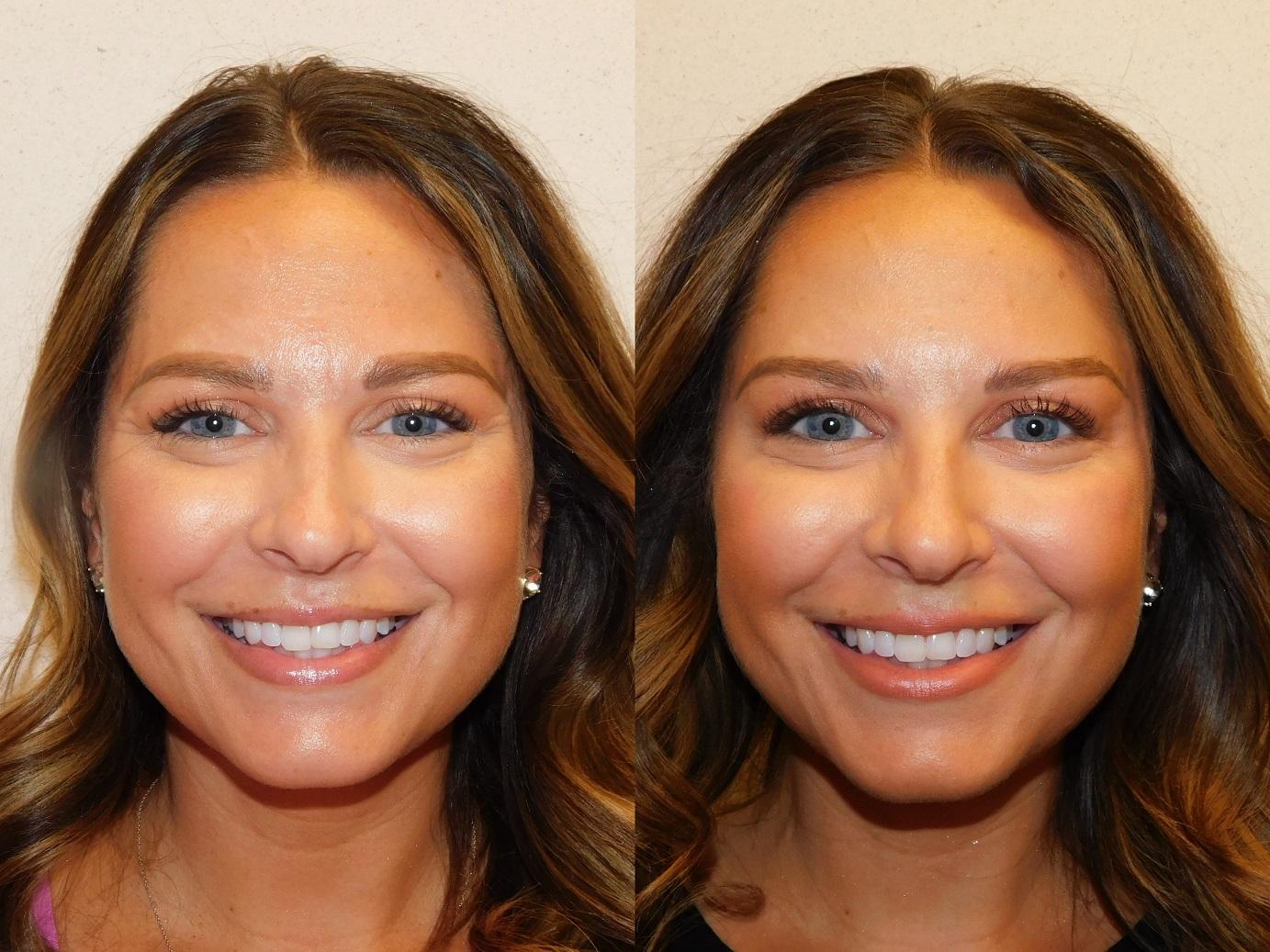 Botox results-Jeuveau-#NEWTOX-Dr. Joel Schlessinger-LovelySkin Omaha-Omaha Blogger-Omaha Beauty Blogger-Beauty Blog Post-Botox Results-Sabby Style-7