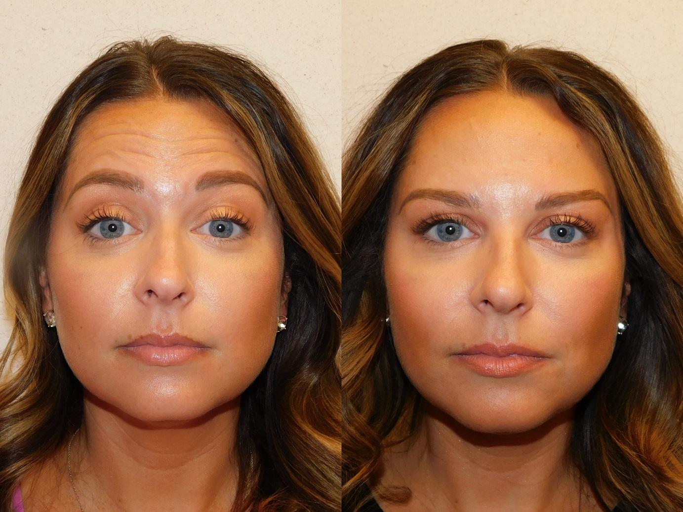 Botox results-Jeuveau-#NEWTOX-Dr. Joel Schlessinger-LovelySkin Omaha-Omaha Blogger-Omaha Beauty Blogger-Beauty Blog Post-Botox Results-Sabby Style-9
