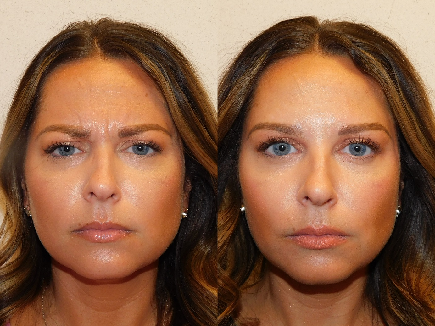 Botox results-Jeuveau-#NEWTOX-Dr. Joel Schlessinger-LovelySkin Omaha-Omaha Blogger-Omaha Beauty Blogger-Beauty Blog Post-Botox Results-Sabby Style-8