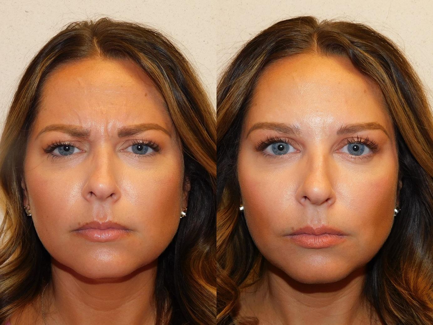 Botox results-Jeuveau-#NEWTOX-Dr. Joel Schlessinger-LovelySkin Omaha-Omaha Blogger-Omaha Beauty Blogger-Beauty Blog Post-Botox Results-Sabby Style-8