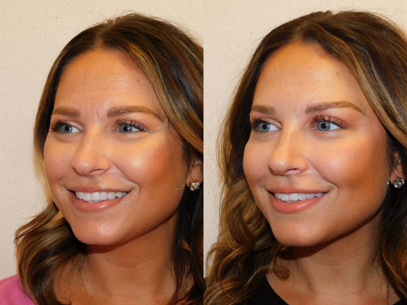 Botox results-Jeuveau-#NEWTOX-Dr. Joel Schlessinger-LovelySkin Omaha-Omaha Blogger-Omaha Beauty Blogger-Beauty Blog Post-Botox Results-Sabby Style-3